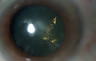 christmas tree cataract