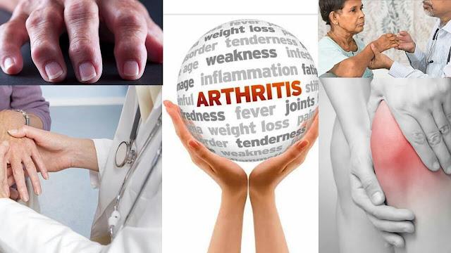 Arthritis: Symptoms, Home Remedies for arthritis