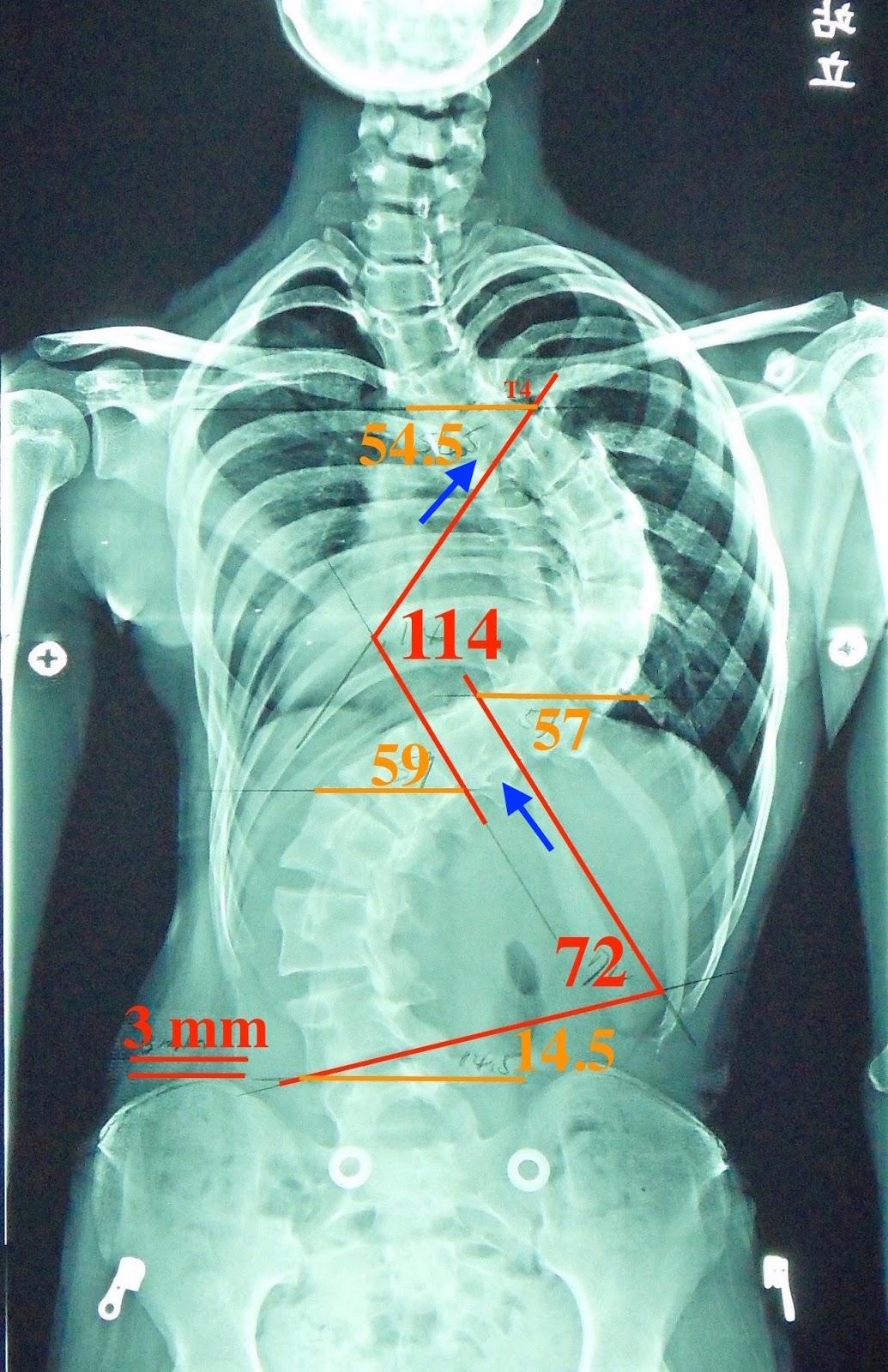 脊椎側彎, 脊椎側彎背架, 脊椎度數, 脊椎側彎矯正, 脊椎側彎治療, schroth運動, schroth脊椎側彎, 德國Schroth