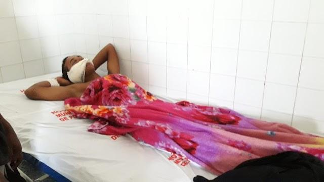 Jovem tem o rosto desfigurado após acidente entre rabetas em Portel