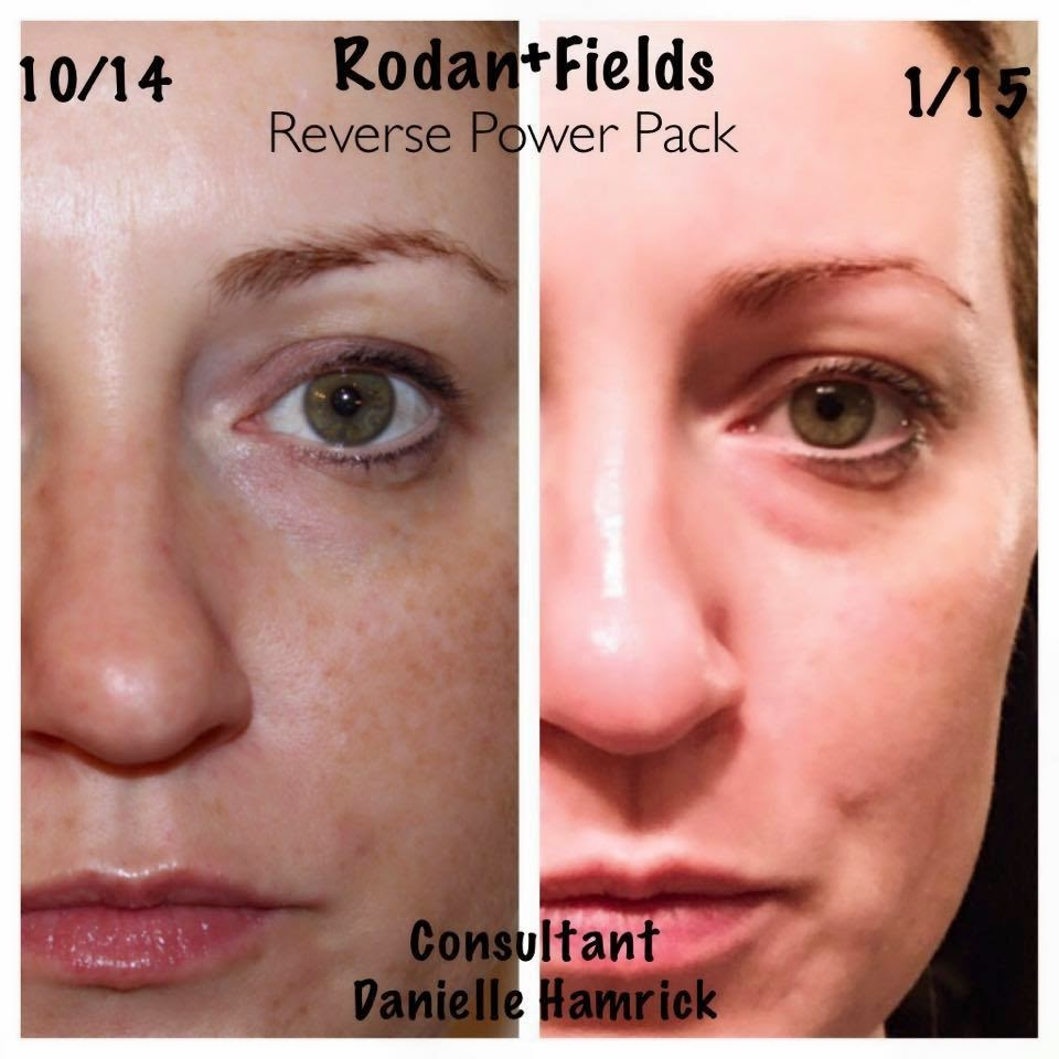 rodan and fields consultant