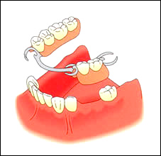 Partial dentures image