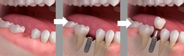 Cấy ghép Implant uy tín - Mang lại nụ cười xinh.