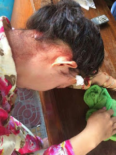 Cambodian Woman Suffers Domestic Violence as her Nigerian husband beats her at a bar (Photos)