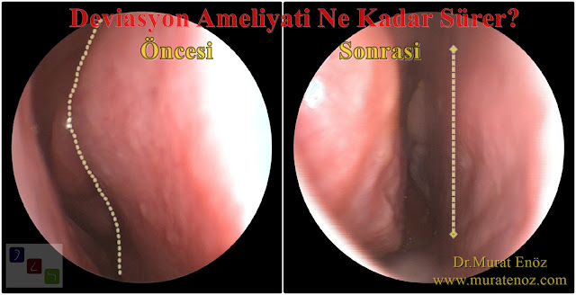 Operation duration of Septoplasty - How long does the surgery of septum deviation? - How long does the operation of the Septoplasty last? - How long will the nasal septum deviation surgery? - Nasal septum deviation surgery duration