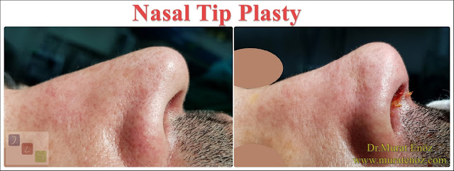 Nasal Tip Plasty in İstanbul - Nose Tip Reshaping in İstanbul - Nose Tip Surgery in İstanbul - Nose Tip Lifting in İstanbul - Droopy Nasal Tip Rhinoplasty - Droopy Nasal Tip Correction - Droopy Nasal Tip Surgery - Nasal Tip Ptosis - Droopy Tip Correction - Nose Tip Surgery