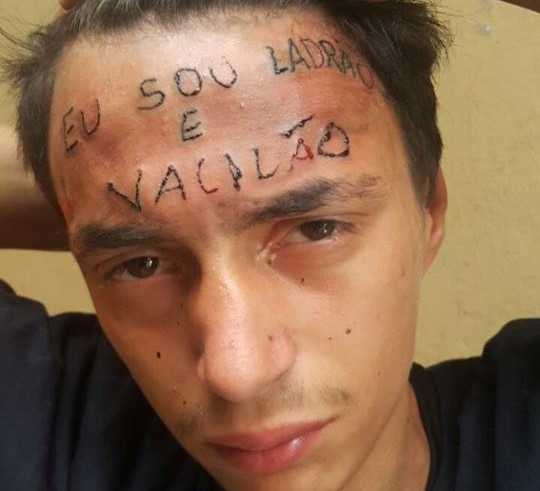 Thousands of dollars raised to erase a young man's tattoo in Brazil