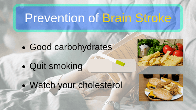 Prevention of Brain Stroke