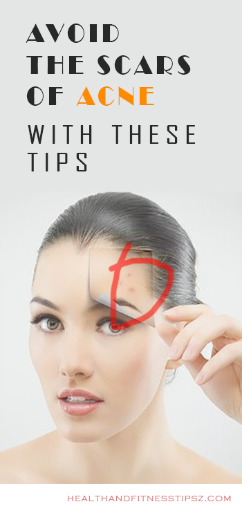 AVOID THE SCARS OF ACNE WITH THESE TIPS
