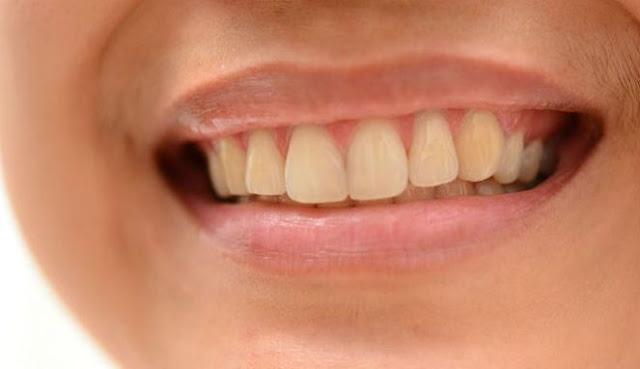 4 Punca Gigi Kuning Cara Memutihkannya Jus Oren Power