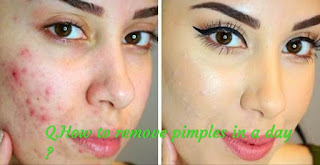 how to remove pimples,how to get rid of pimples,how to get rid of acne,how to remove acne,how to remove pimples overnight,pimples,remove pimples naturally,remove pimples from face,how to get rid of acne overnight,pimple,how to get rid of pimples overnight,get rid of pimples,how to get rid of acne fast,get rid of pimples fast,get rid of pimples overnight.
