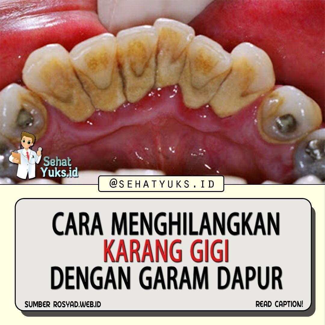 Begini Cara Menghilangkan Karang Gigi Dengan Garam Dapur Tanya Dokter