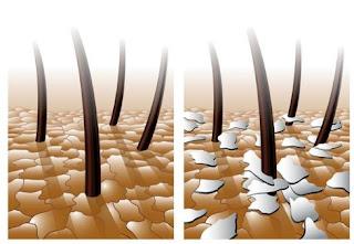 bahaya lidah buaya untuk rambut  manfaat lidah buaya untuk meluruskan rambut  efek samping lidah buaya untuk rambut  cara alami menghilangkan ketombe dengan lidah buaya  cara mengatasi rambut berketombe dan gatal  cara menghilangkan rambut rontok secara cepat  cara menghilangkan ketombe dan rambut rontok dengan bahan alami  cara menghilangkan ketombe dan rambut rontok dengan lidah buaya dan jeruk nipis