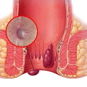 Gambar Saran Obat Bengkak Di Sekitar Anus Tanpa Operasi