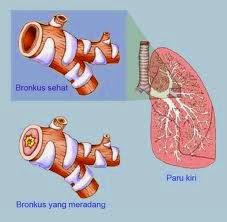 Obat Penyakit Bronkitis Kronis