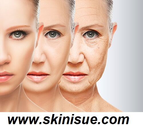 The Aging Skin Causes