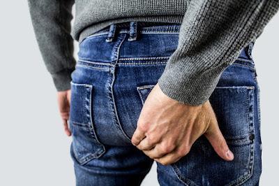 ¿QUE SON LAS HEMORROIDES? -CAUSAS Y SINTOMAS