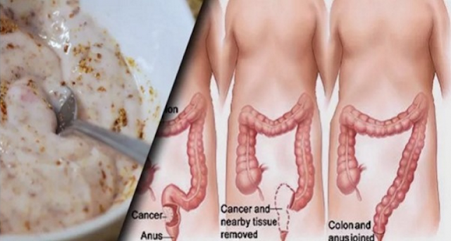 With These 2 Items Remove Toxins Of Intestines