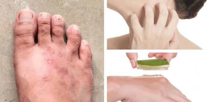 medicamentos caseros para los hongos en la piel