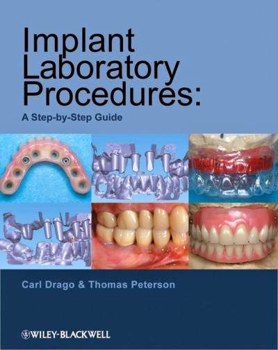 Implant Laboratory Procedures .. A Step-by-Step Guide - Carl Drago,Thomas Peterson - © 2010.pdf