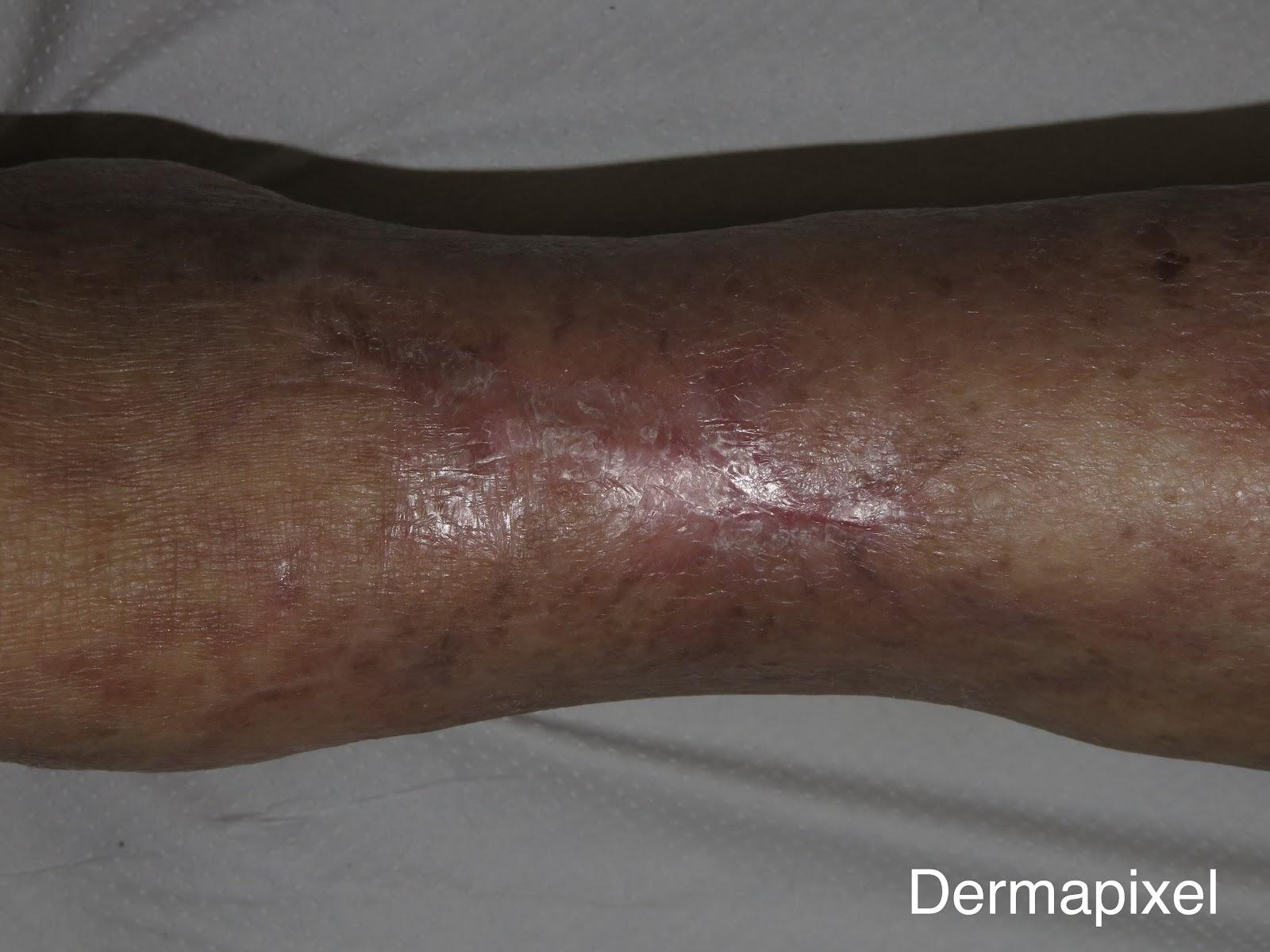 Úlceras y hemodiálisis: alarma de calcifilaxis