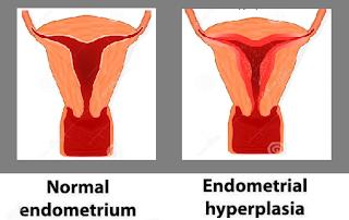 cara mengobati penebalan dinding rahim tanpa kuret