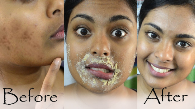 How To Get Rid Of Acne Scars For Good Sokle Rev