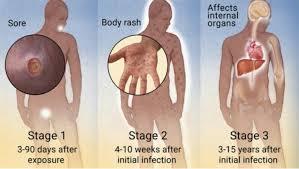 Pengobatan Penyebab Penyakit Sipilis