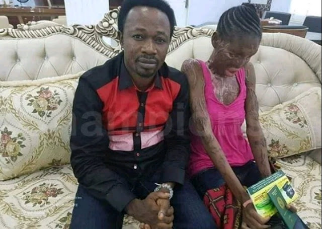 Pastor Joshua Iginla gives N10 million for the treatment of a muslim girl whose boy friend poured acid on