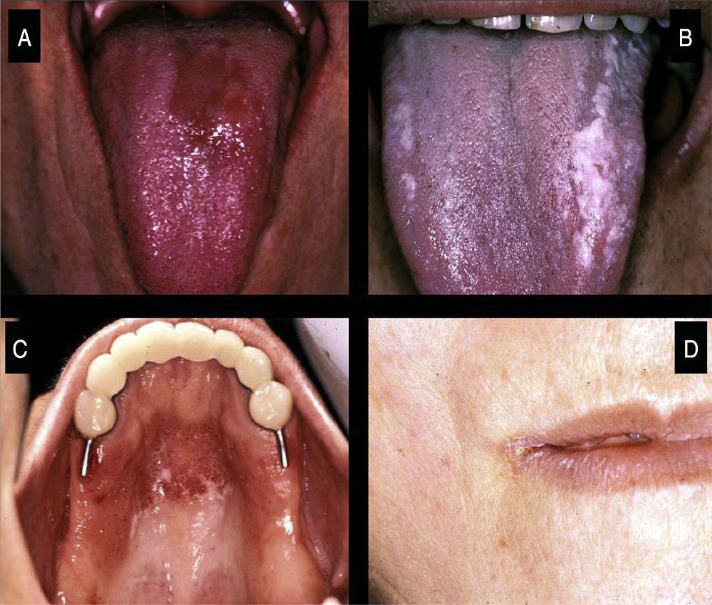 oral-medicine