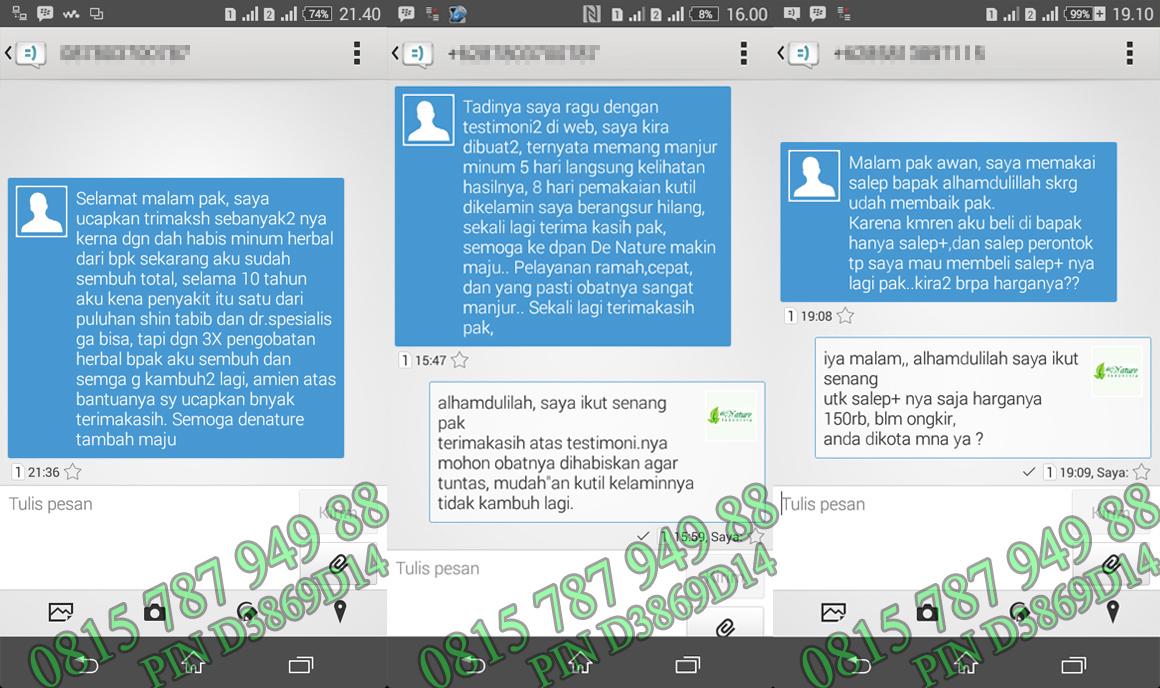 Obat Kutil Kelamin Herbal De Nature Indonesia P Testimoni