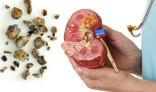 Kidney Stone Disease, Causes, Symptoms, Prevention and Treatment.