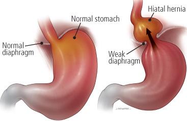 Gastric hernia symptoms and hiatal hernia diet