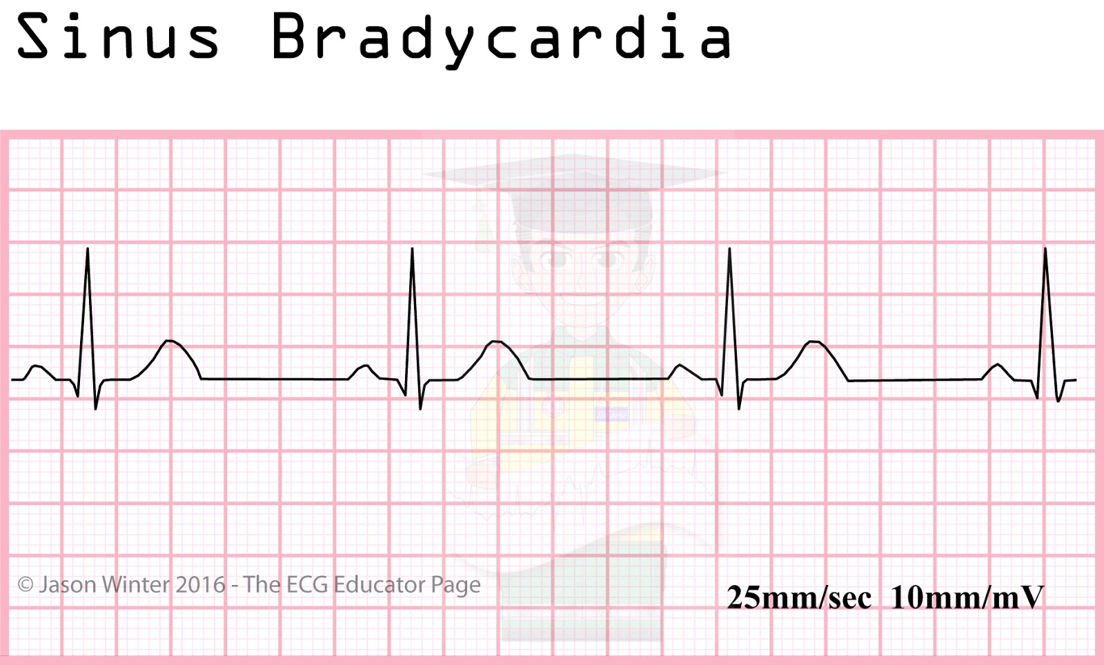 ECG Educator Blog : Si...