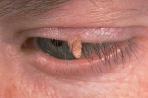 filiform wart adult eye