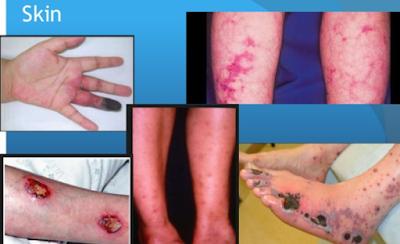 manifestasi-kulit-poliartritis-nodosa
