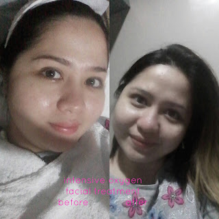 before and after oxygen facial