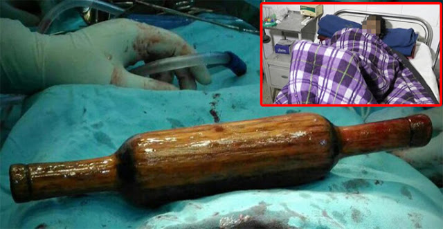 She was rushed to the hospital because of severe pain in the abdomen. What the doctors found inside her was SHOCKING!