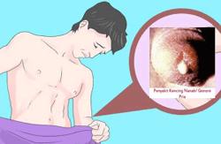 Aku Tertular Penyakit Kelamin Mengerikan Herpes Genital Sama Do'i