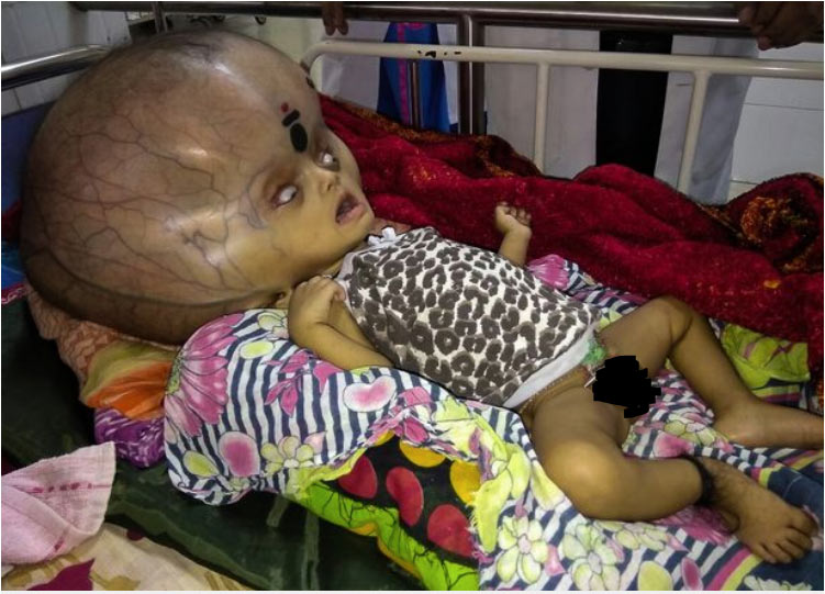 "Baby with the ""biggest head in the world"" finally undergoes surgery"