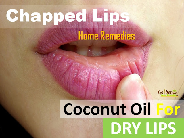 Coconut Oil For Chapped Lips, Chapped Lips, Dry Lips, How To Get Rid Of Chapped Lips, How To Get Rid Of Dry Lips, Home Remedies For Dry Lips,