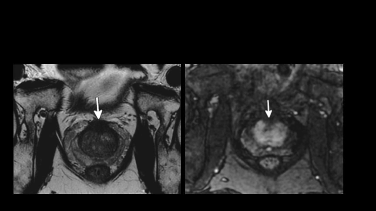 radiología de la glándula prostática