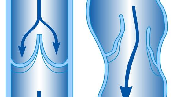 10 лека за разширените вени