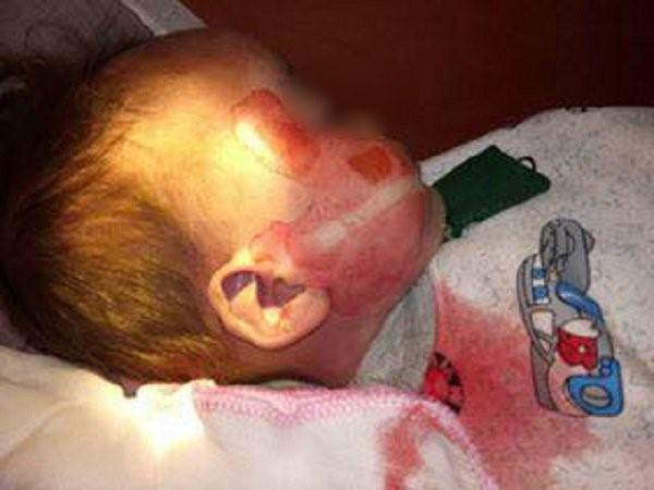 Bé trai tử vong trên người có nhiều vết thương lạ sau khi cấp cứu tại bệnh viện?