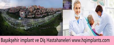 Başakşehir implant ve Diş hastahaneleri