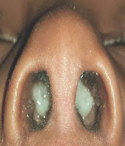 White Scab Under Nose | Healthy HesongBai
