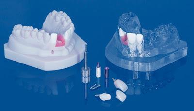 smile-sydney-dentist-digital-impression-technique-in-the-dental-industry