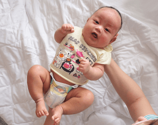 Eczema On Baby's Scalp