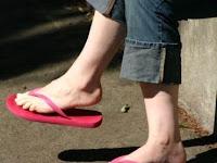 Memakai Sandal Jepit Ternyata Berbahaya!