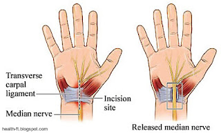 Relieving pressure on the median nerve